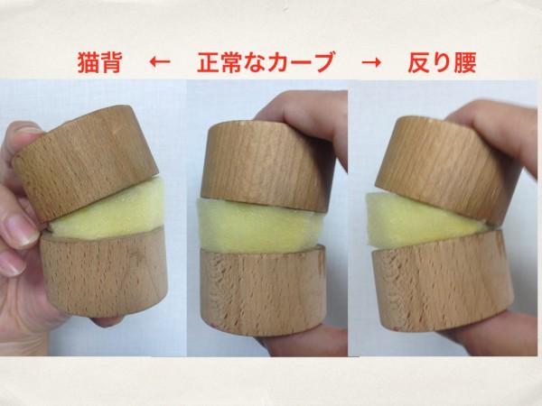 椎間板変化.001