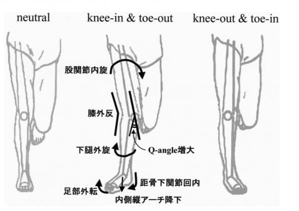 kneein-toeout1