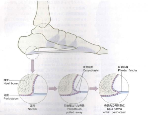 足底筋膜jpg
