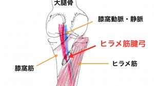 むくみの原因〜反張膝(過伸展膝)の女性が多い!