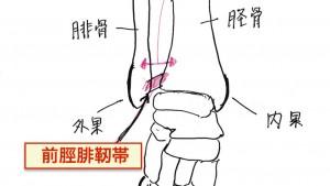 足首捻挫の後遺症